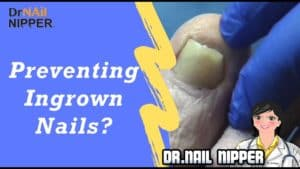 Preventing Ingrown Toenails with Dr Nail Nipper [Friday Premiere] (2019)