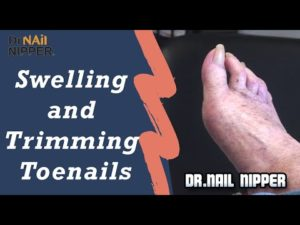 Dr Nail Nipper – Thanksgiving Thursday Special