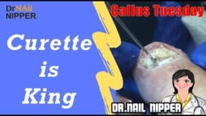 Curette is King [Callus Tuesday] (2019)