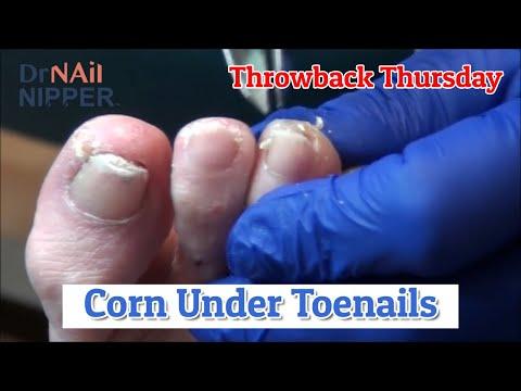 Corns under Toenails [Throwback Thursday] 1