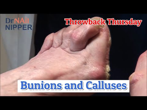 Bunions and Calluses (and Dogs) [Throwback Thursday] 1