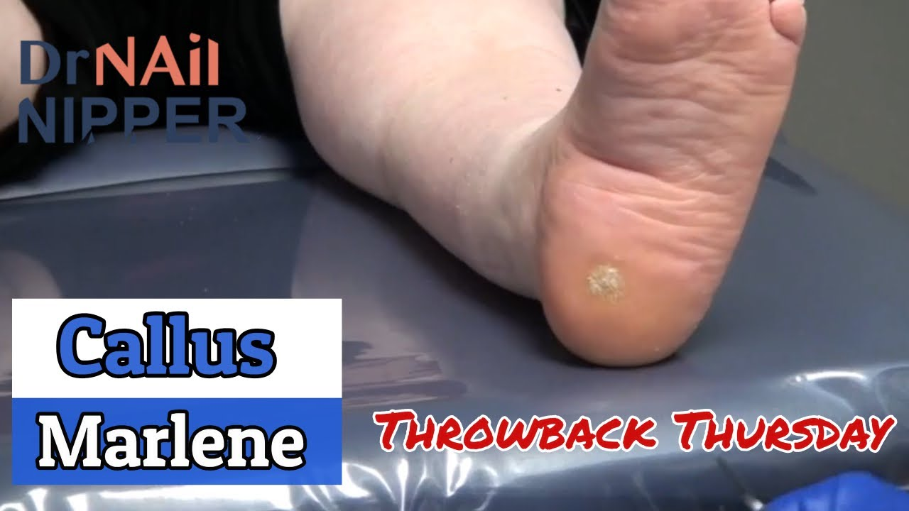 Callus with Marlene [Throwback Thursday] 1
