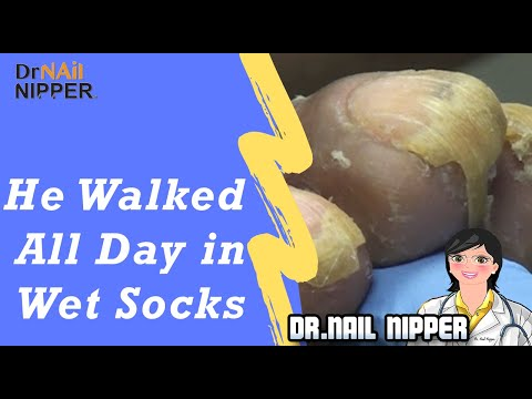 Walking All Day in Wet Socks, Cutting Toenails with Dr Nail Nipper (2019) 1