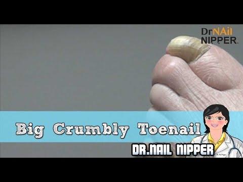 Big Crumbly Toenails - Dr. Nail Nipper 1