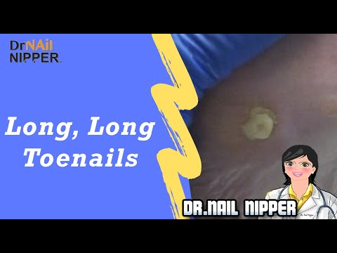 How many of you have long toenails? Dr Nail Nipper has a patient with a surprise. 1
