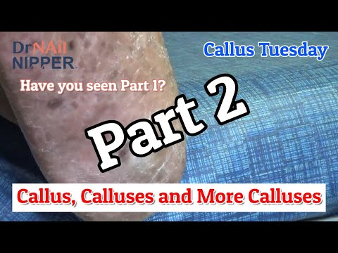 Callus, Calluses, and More Calluses on Right Foot - Part 2 [Callus Tuesday] (2020) 1