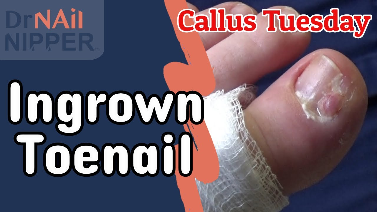 Ingrown Toenail for Callus Tuesday (2020) 1