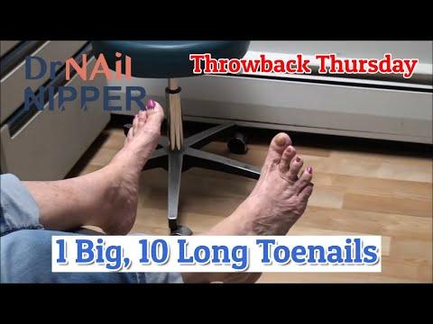 One Big Toe, 10 Long Toenails [Throwback Thursday] 1