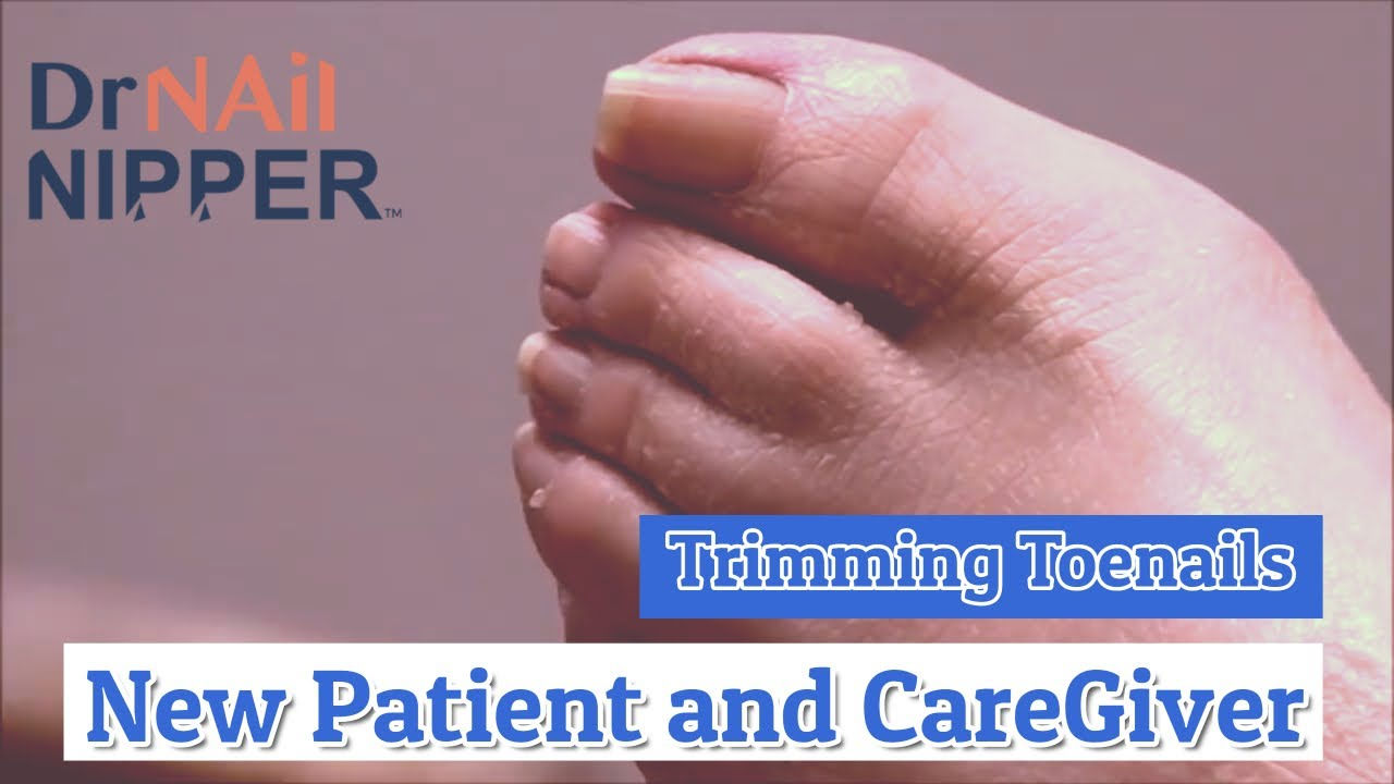New Patient and Care Giver Receives Trimming Toenails [Throwback Thursday] 1