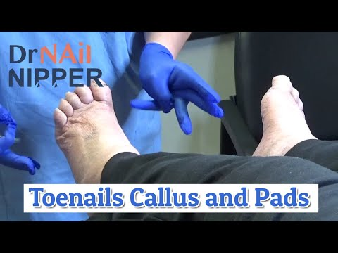 Toenails, Foot Calluses and Foot Pads [link moved] (2020) 1