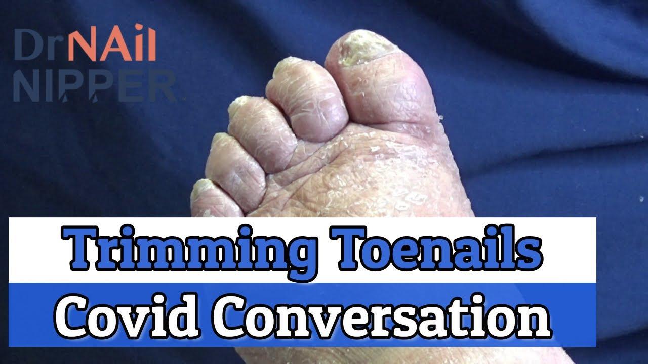 Trimming Toenails with a Coronavirus Conversations (2020) 1