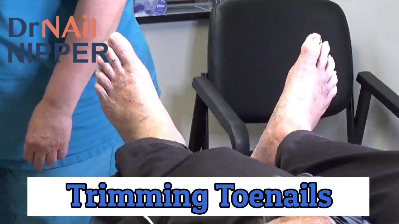Trimming Toenails with Dr Nail Nipper (2020) 1