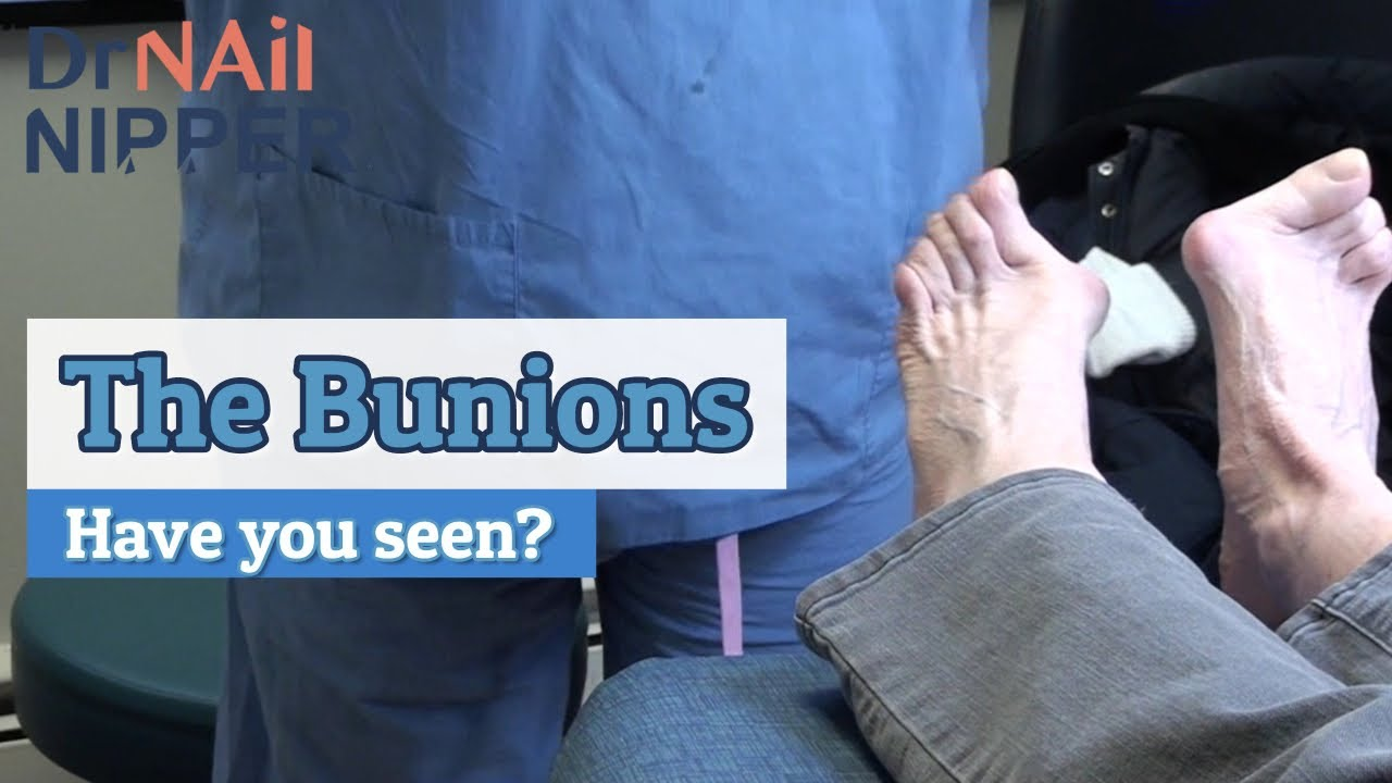 Have You Seen these Bunions?  (2020) 1