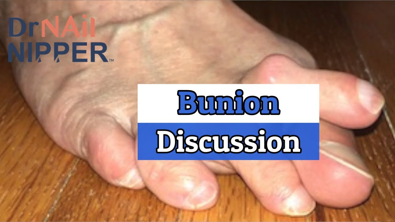 The Bunion Discussion - Dr Nail Nipper (2020) 1