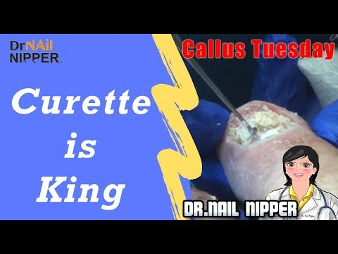 Curette is King, Callus Tuesday with Dr Nail Nipper (2019) 1