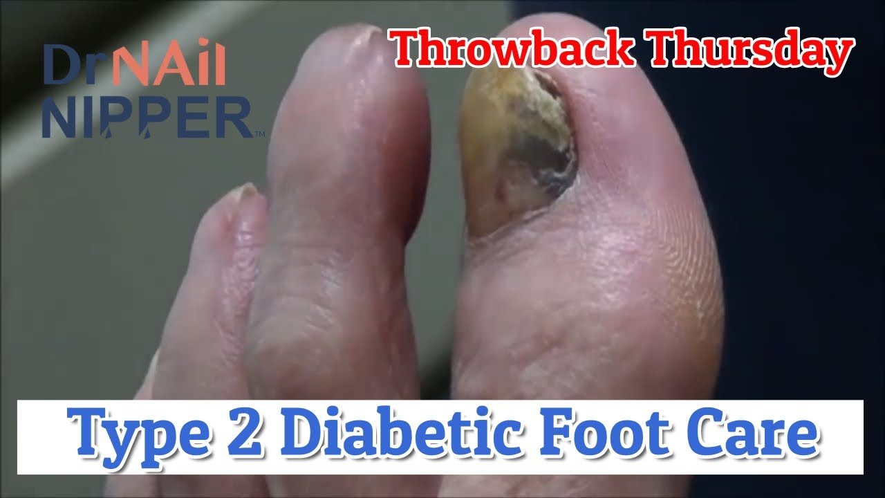 Type 2 Diabetic Foot Care [Throwback Thursday] 1