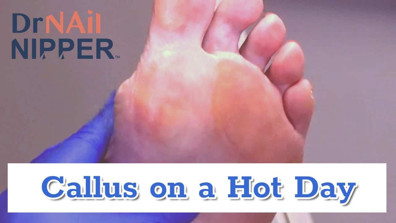 Hot Calluses or Hot Air? (link is moved) [Callus Tuesday Replay] (2020) 1