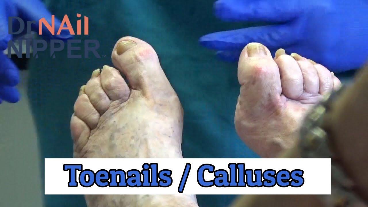 Toenails and Calluses [Friday] (2020) 1