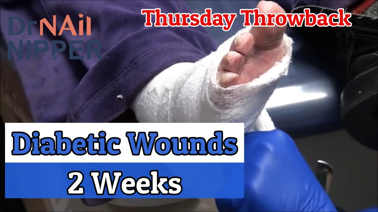 Diabetic Wounds After 2 Weeks [Throwback Thursday] 1