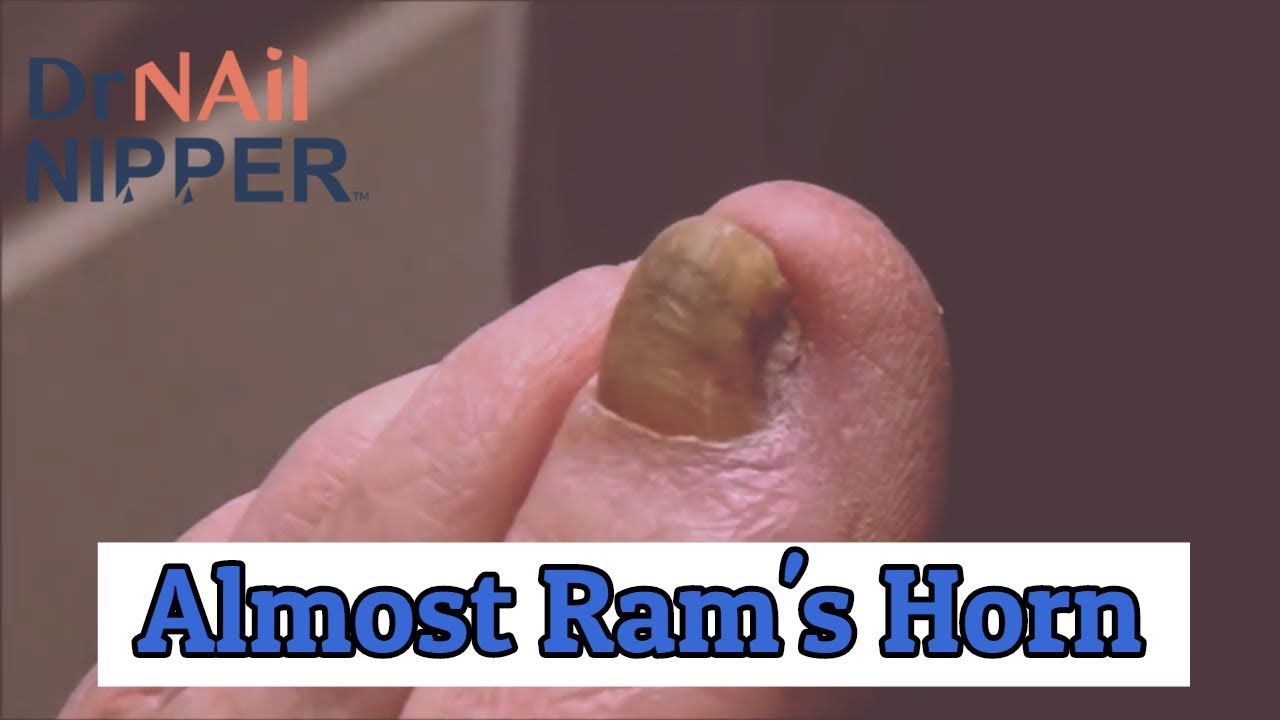 Remember Ram's Horns Toenail?  This was an Almost  [Throwback Thursday] 1