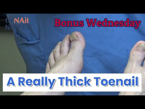A Really Thick Toenail [Moving the Video Link] (2020) 1