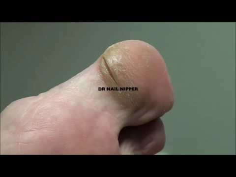 Thickest Nails and Clipping by Dr Nail Nipper 1