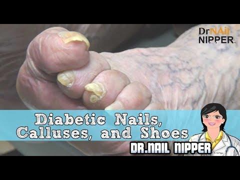 Diabetic Nails, Calluses, and Shoes - Dr Nail Nipper 1