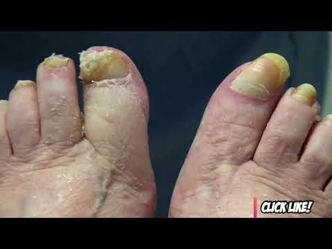 How to Treat Thick Elderly Nails!  Dr. Nail Nipper 1