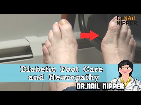 Diabetic Foot Care and Neuropathy - Dr Nail Nipper 1