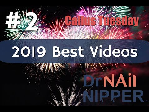 #2 Best Video of 2019, Dr Nail Nipper [Callus Tuesday] 1