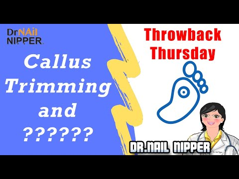 More than Callus Trimming? Find Out What It is....    #8 - Throwback Thursday 1