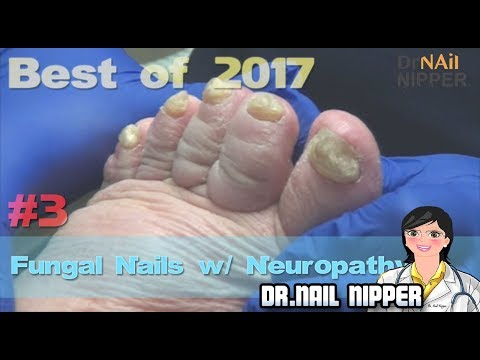 #3 Best of 2017 - Dr Nail Nipper - Trimming Fungal Nails on Patient with Neuropathy 1