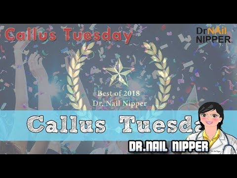 Callus Tuesday #1 video of 2018 1
