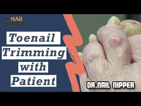 Take 2 Toenail Trimming with Dr Nail Nipper Patient (2019) 1