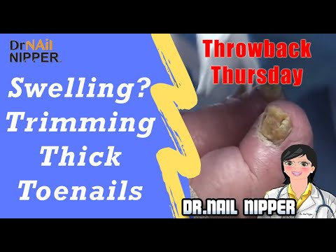 Swelling... Chance of Trimming Thick Toenails 1