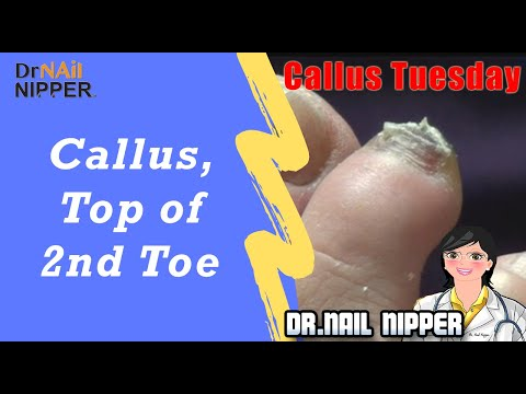 Callus, Tip of the 2nd Toe #54 [Callus Tuesday]  (2019) 1