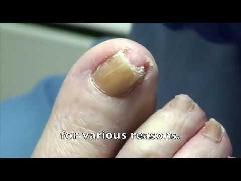Biggest Curved Toenail!  Removal & Treatment - Dr. Nail Nipper 👍👍👍👍 1