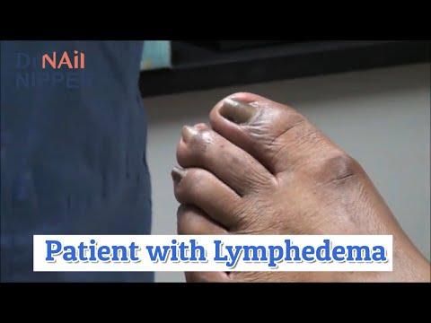 Dr Nail Nipper Lymphedema [Throwback Thursday] 1