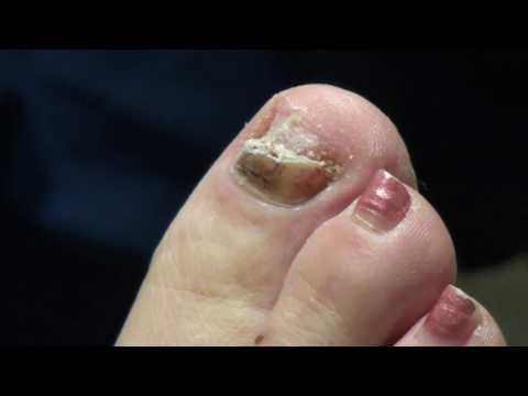 Nail Contusion (bruise) 1