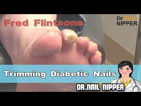 Fred Flintstone - Diabetic Wound on Foot 1
