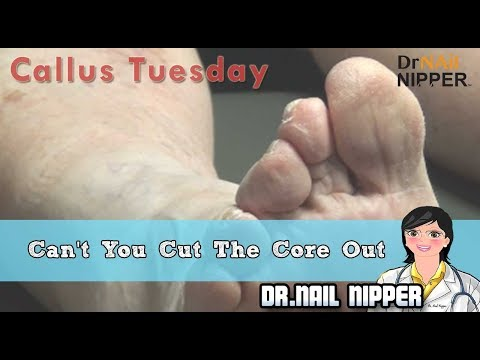 It is a Corn - Can't You Cut The Core #29 - Dr Nail Nipper Presents Callus Tuesday 1