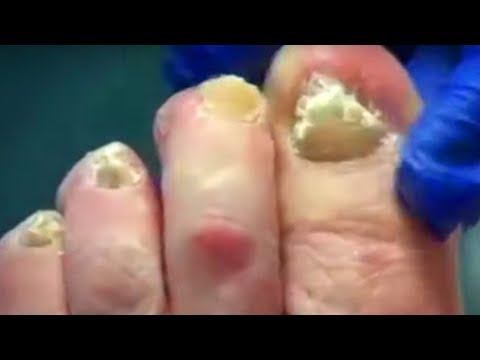 YouTube's BEST Foot Videos!  Dr. Nail Nipper's Best Nail Clipping!  Podiatry 1