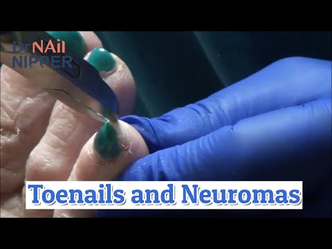 Nails, Neuromas and Blue [Throwback Thursday] 1