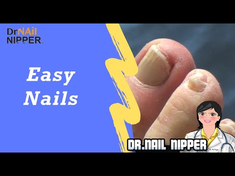 Easy ToeNails, Comfort Movement and Walking with Dr Nail Nipper (2019) 1