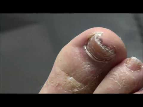 Toe-Tally Awesome Nail Care with Dr. Nail Nipper! 1