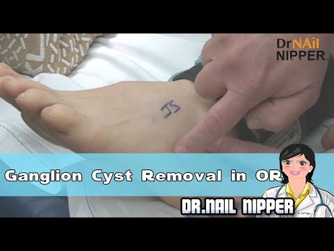 Ganglion Cyst Removal in Operating Room 1