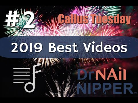 Best Video of 2019  #2 - Dr Nail Nipper 1