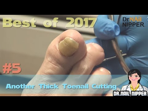 #5 Best of 2017 - Dr Nail Nipper 1