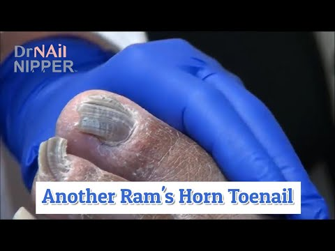 Baby Small Toe Ram's Horn Toenail [Throwback Wednesday] 1