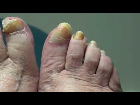 Long, Long Nail Removed & Clipped!  Dr Nail Nipper 1